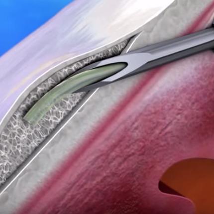 XEN Gel Implant 03